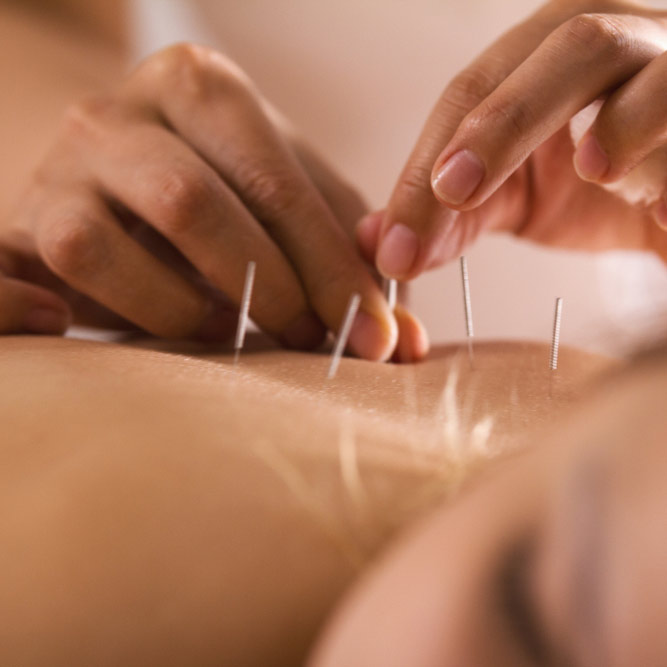 Acupuncture in Ascot